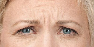 Key-Laser-Botox-Before