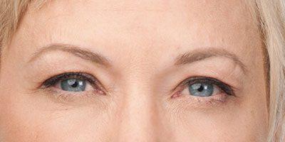Key-Laser-Botox-after